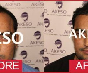 Akeso Hair Transplant Clinic Preet Vihar, New Delhi